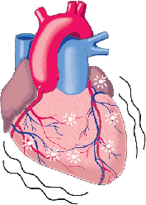 vasi coronarici ischemia cardiaca nel