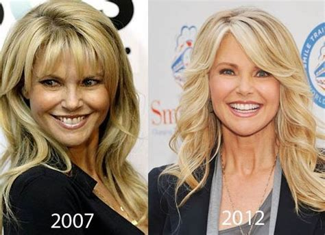 Christie Brinkley Gets Emergency Surgery by Christie Brinkley Before And After Plastic Surgery 05