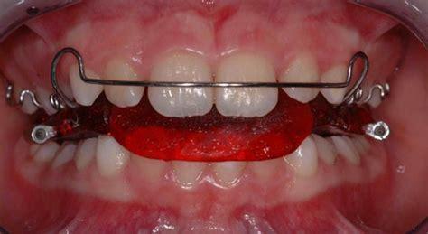 apparecchio dentale interno ortodonzia e ortodonzia invisibile bari studio deodato bari