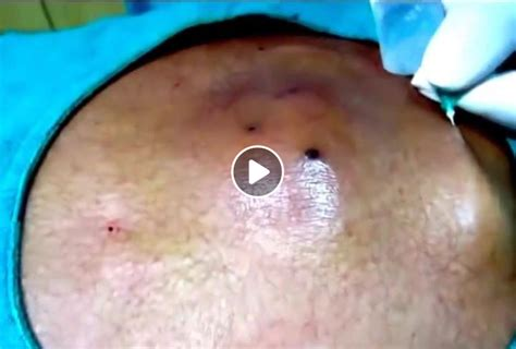 ingrown hair cyst removal deep ingrown hair cyst removal viral on the web now