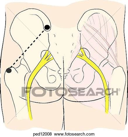 stock illustration of technique for intramuscular