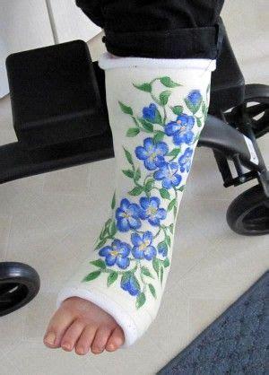 leg cast colors painted casts garden style painted casts