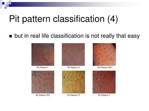 pattern classification chapter 3 solution ppt pit pattern classification in colonoscopy powerpoint