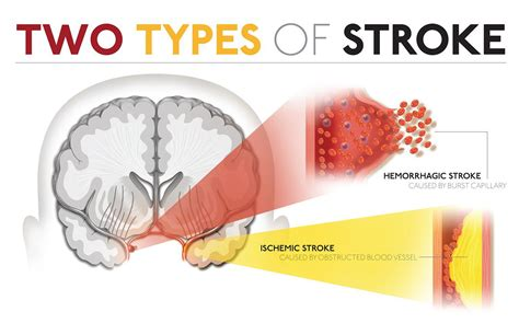 a stroke brain stroke causes signs diagnosis prevention continental hospitals