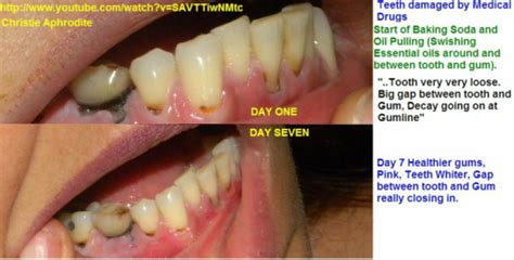 can you really re grow remineralize your teeth and gums