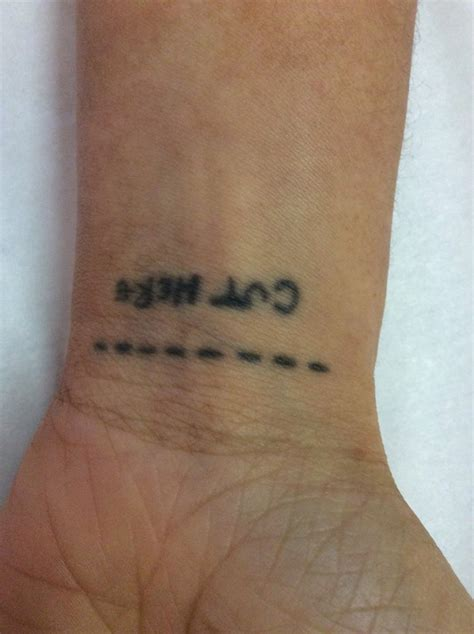 tattoo removal montreal nuyu laser removal piercing shop