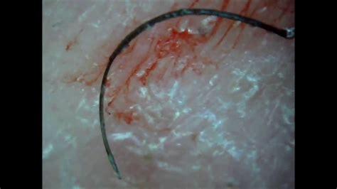 stop ingrown hairs laser hair removal on long island new long ingrown hair removed youtube
