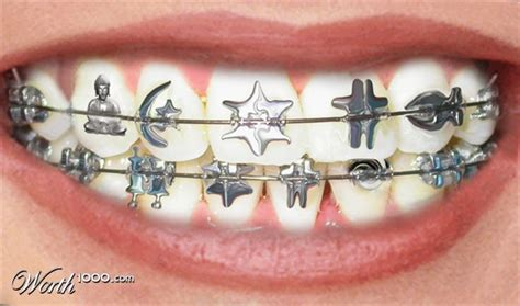 cool colors for braces pin braces colors selector on