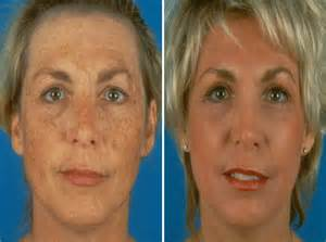 Xanthelasma palpebrarum treatment with the ultrapulsed co2 laser