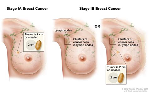 breast cancer breast cancer treatment pdq 174 patient version national