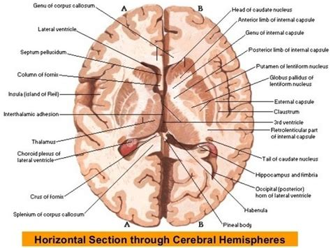 what sort of view is a horizontal incision from the