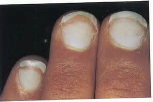 listen to what your nails tell you hubpages