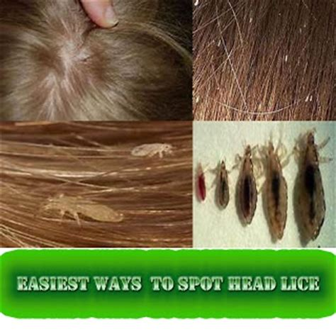 what color are lice easiest ways reduce and remove lice pinned by