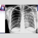 Pleural Effusion Vs Pneumothorax | 638 x 479 jpeg 73kB