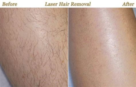 s laser hair removal laser hair removal minneapolis mn