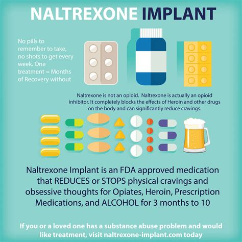 Detox Time Before Receiving Naltrexone Extended Release Injection by Naltrexone Implant For Addiction Discover Freedom From