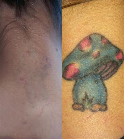 tattoo removal colors before and after photos the new canvas