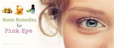 pink eye home treatment 30 home remedies for pink eye relief in adults