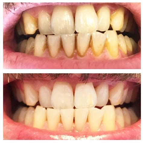 stain removal  teeth whitening    brighter
