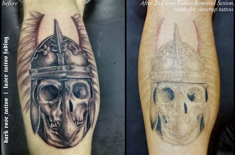 laser tattoo removal fresno ca removal fresno removal