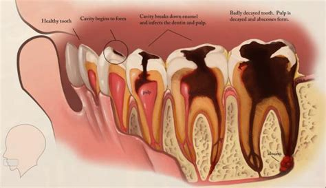 how does a be how does a tooth decay sabka dentist dental clinic in india