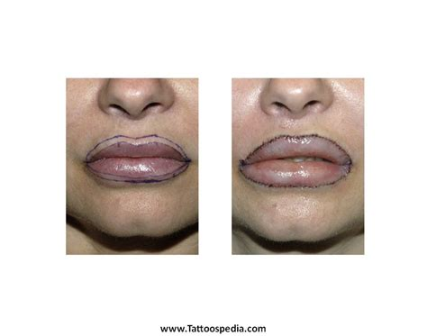 average price for tattoo removal lip removal cost 6