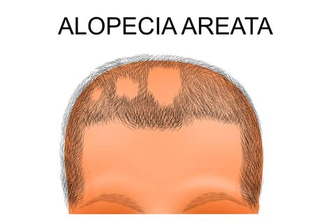 circular pattern hair loss alopecia totalis the ultimate natural treatment guide 2018
