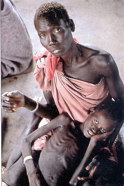 imagenes de niños que mueren de hambre desnutricion en el mundo taringa