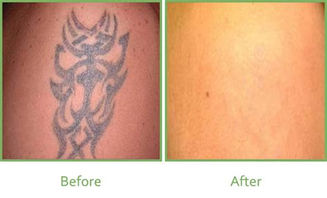 before and after tattoo removal 100 fading fast laser removal my friend