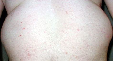 what does a bed bug rash look like pictures of bed bug bites