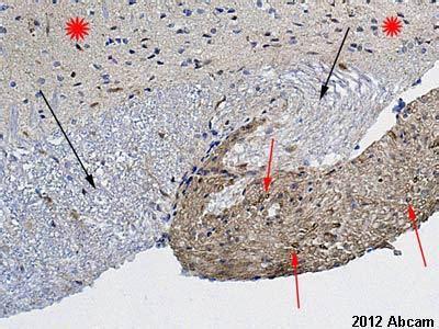 protein zero antibodies myelin蛋白zero抗体 ab31851 abcam中国