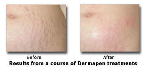 stretch mark reduction face amp body clinic edinburgh