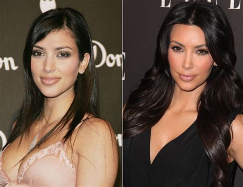 kim kardashian plastic surgery before after pictures 2015 kim kardashian before and after plastic surgery