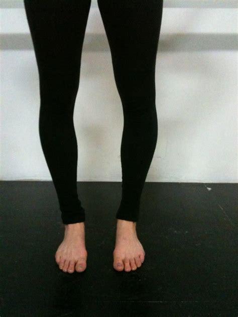 bow legged being bow legged the ballet
