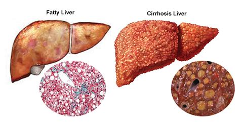 liver disease what happens when you liver disease symptoms and causes health expert