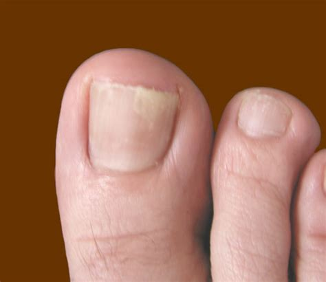 damaged toenail bed is there fungus among us knoxville dermatology group