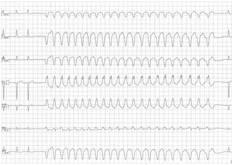 float atrial fibrillation with a run of ventricular