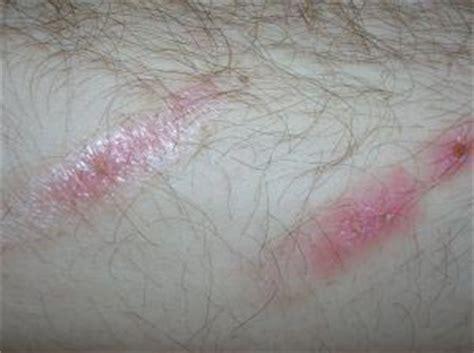 tattoo healing bruising how to heal a bruise