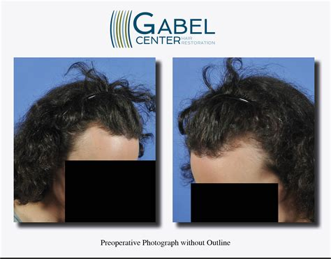 post hair transplant timeline watch a patient s real time growth after 3439 grafts