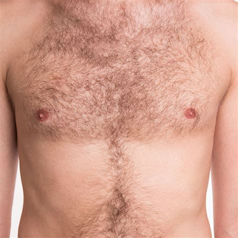 transplant hair from chest to head body hair transplants chest hair implants body hair