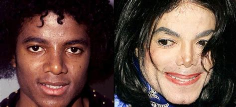 why did michael jackson change his skin color how did michael jackson change his skin color rowland98