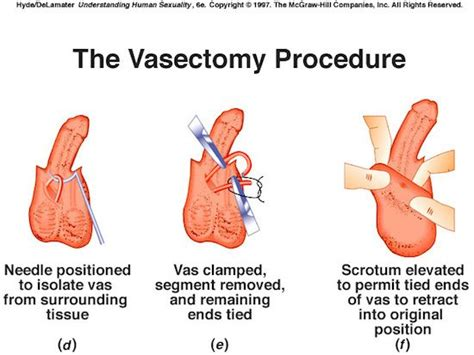 c section tubal ligation vasectomy procedure effects risks effectiveness and