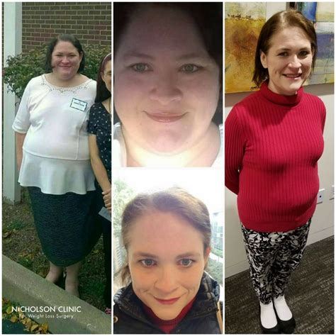 weight loss surgery my gastric band nearly killed me 1000 images about weight loss surgery testimonials on