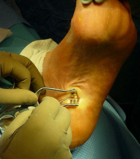 harnessing the potential of the instep plantar fasciotomy
