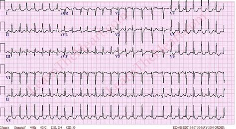 atrial fibrillation with rvr 4 learntheheart