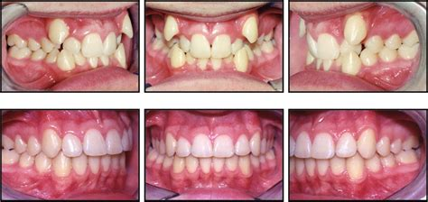 Biaya Pemutihan Gigi Di Klinik praktek dokter gigi agus wiyandono perawatan orthodontic