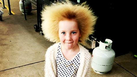 what is hair of the uncombable hair condition gives unruly mane today