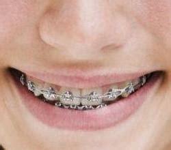 Pasta Gigi Khusus Behel cara merawat gigi bagi memakai kawat gigi behel cara