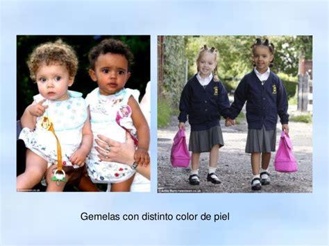 gemelas de diferente color2015 gemelos
