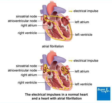 atrial fibrillation diagram atrial fibrillation bupa uk